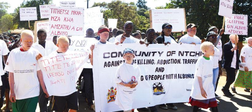 Albino killed in Nkhata Bay