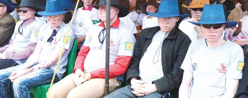 Government for more investigations into albino killings