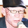 Malawi police search for 12-year-old albino remains
